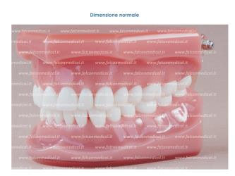 Real Series - Occlusione ideale base rosa, dim. normale